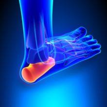 best compression socks for plantar fasciitis
