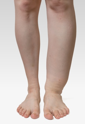 Best Compression Socks For Swelling